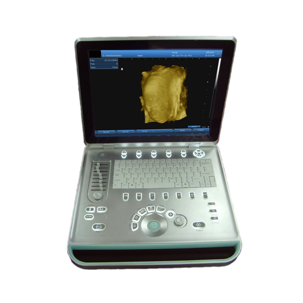 LTUB02 Laptop Ultrasound B scanner